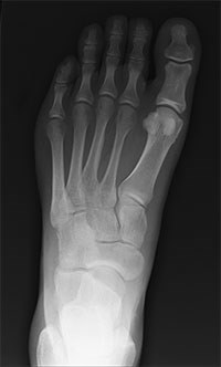 John Kenward MRCVS, a director of Maidstone practice Pet Emergency Treatment Services, has been given a conditional discharge for allowing an employee to X-ray her own foot after a horse stamped on it.